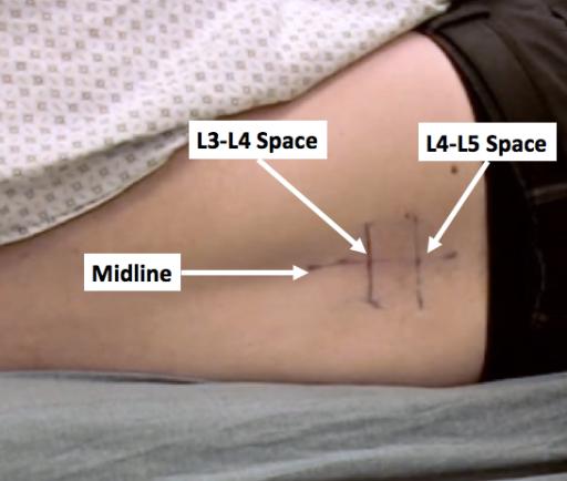 lp-markings
